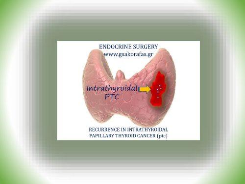 Ενδοθυρεοειδικός θηλώδης καρκίνος θυρεοειδούς και πιθανότητα υποτροπής