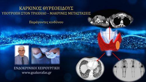 Θηλώδης / θυλακιώδης (διαφοροποιημένος) καρκίνος θυρεοειδούς και υποτροπή (στον τράχηλο ή μακρινές μεταστάσεις ) – παράγοντες κινδύνου
