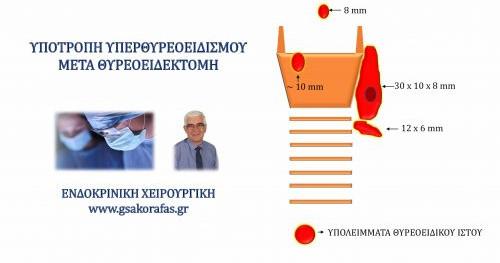 Υπερθυρεοειδισμός (νόσος Graves') και θυρεοειδεκτομή – η σημασία της έκτασης της θυρεοειδ/τομής