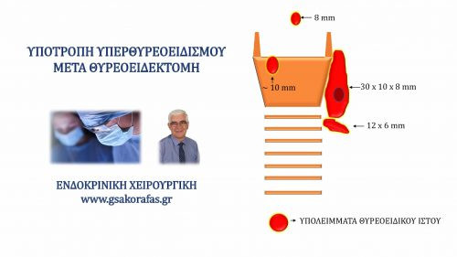 Υπερθυρεοειδισμός (νόσος Graves') και θυρεοειδεκτομή - η σημασία της έκτασης της θυρεοειδεκτομής