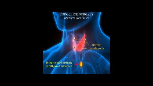 Έκτοπο αδένωμα παραθυρεοειδούς: εμβρυολογία, ανατομία και κλινική σημασία