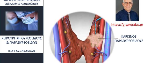Καρκίνος παραθυρεοειδούς - διάγνωση και θεραπευτική αντιμετώπιση