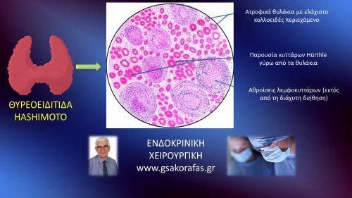 Θυρεοειδίτιδα Hashimoto-Τι είναι? Που οφείλεται? Πώς εκδηλώνεται?