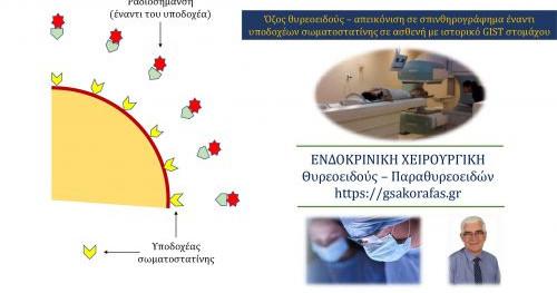 Όζος θυρεοειδούς – απεικόνιση σε σπινθηρογράφημα έναντι υποδοχέων σωματοστατίνης σε ασθενή