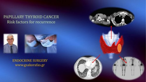 Papillary thyroid cancer - risk factors for recurrence