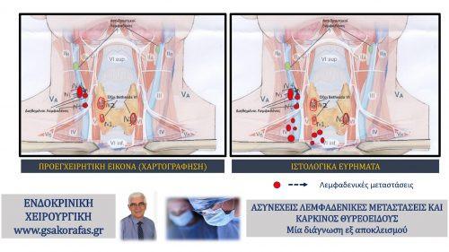 Καρκίνος θυρεοειδούς - ασυνεχείς (skip) λεμφαδενικές μεταστάσεις: δεν θα πρέπει να θεωρούνται δεδομένες ακόμη και με βάση την λεπτομερή χαρτογράφηση λεμφαδένων τραχήλου-με αφορμή μία ασθενή μας.