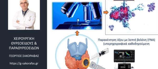Όζοι θυρεοειδούς-παρακέντηση με λεπτή βελόνη (FNA)-κύτταρα Hürthle: τι σημαίνει η παρουσία τους?