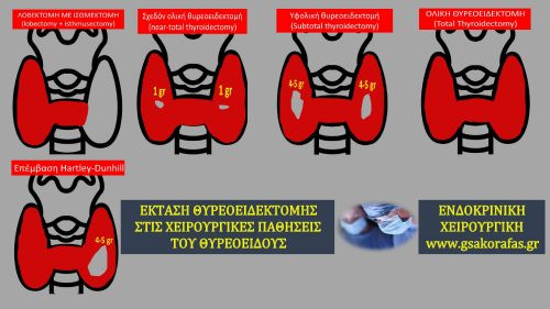 Θυρεοειδεκτομή-Πώς επιλέγεται η έκταση της στις χειρουργικές παθήσεις του θυρεοειδούς;