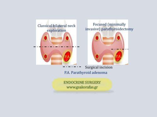 Υπερπαραθυρεοειδισμός-ελάχιστα επεμβατική παραθυρεοειδεκτομή