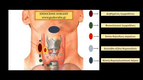 Καρκίνος θυρεοειδούς και ασυνεχής λεμφαδενική μετάσταση
