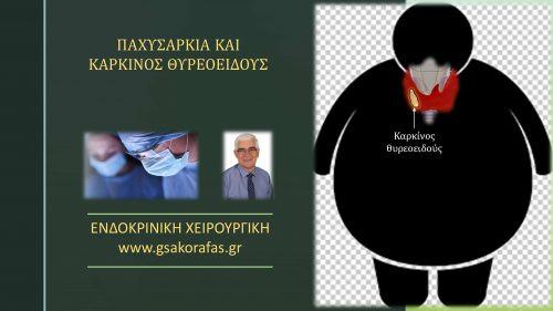 Καρκίνος θυρεοειδούς και παχυσαρκία