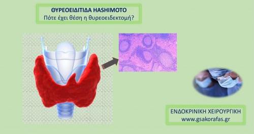Θυρεοειδίτιδα Hashimoto-πότε έχει θέση η θυρεοειδεκτομή?