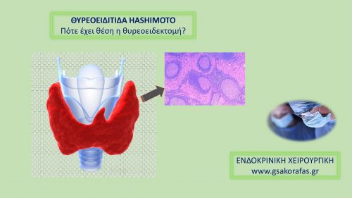 Θυρεοειδίτιδα Hashimoto-πότε έχει θέση η θυρεοειδεκτομή