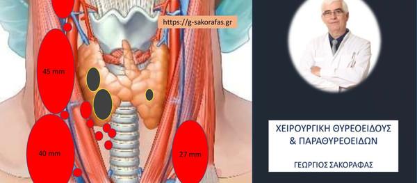 Καρκίνος θυρεοειδούς, αμφοτερόπλευρες λεμφαδενικές μεταστάσεις και χυλώδες συρίγγιο υψηλής παροχής