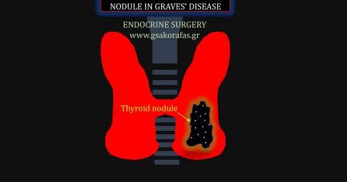 Διάχυτη τοξική βρογχοκήλη (νόσος Graves) και όζος θυρεοειδούς – πως αντιμετωπίζεται?