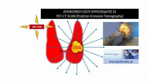 Όζος θυρεοειδούς και τομογραφία εκπομπής ποζιτρονίων