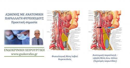 Ανατομία θυρεοειδούς – παραλλαγή σε ασθενή μας: πρακτική σημασία στη θυρεοειδεκτομή
