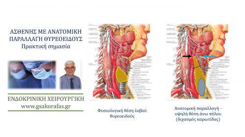 Ανατομία θυρεοειδούς-παραλλαγή σε ασθενή μας: πρακτική σημασία στη θυρεοειδεκτομή
