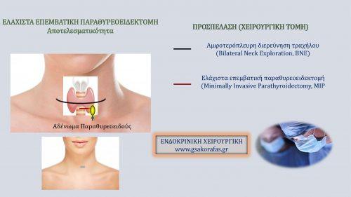 Πρωτοπαθής Υπερπαραθυρεοειδισμός και ελάχιστα επεμβατική παραθυρεοειδεκτομή - Αποτελεσματικότητα και Ασφάλεια