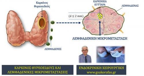 Θηλώδης καρκίνος θυρεοειδούς και μικρομεταστάσεις στους λεμφαδένες του τραχήλου