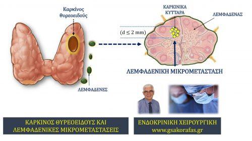 Θηλώδης καρκίνος θυρεοειδούς και μικροσκοπικές μεταστάσεις ('μικρομεταστάσεις') στους λεμφαδένες του τραχήλου