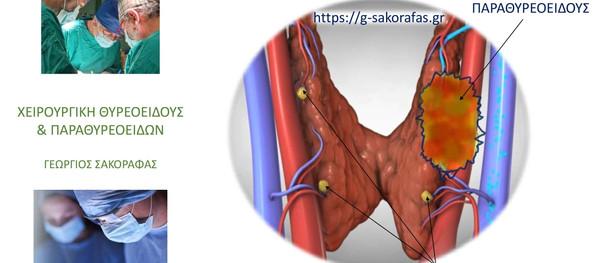 Πρωτοπαθής υπερπαραθυρεοειδισμός και καρκίνος παραθυρεοειδούς.