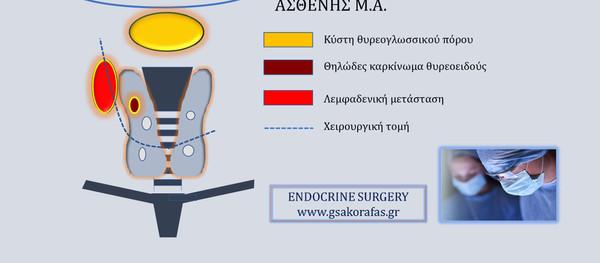 Κύστη θυρεογλωσσικού πόρου, ταυτόχρονη εκτομή με ολική θυρεοειδεκτομή και λεμφαδενικό καθαρισμό