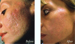 acne-scar-treatments-overview_570_Acnescars (1).jpg