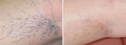 vein removal.jpg