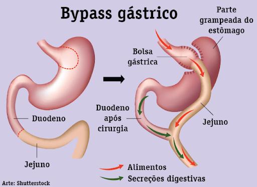 Cirurgia de by-pass gástrico