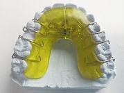dental-braces-542262_1920_edited.jpg