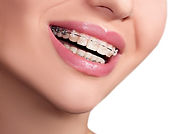 tooth-coloured-braces-section-dropdown-e