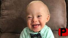Gerber elige un bebé con síndrome de Down para Publicidad
