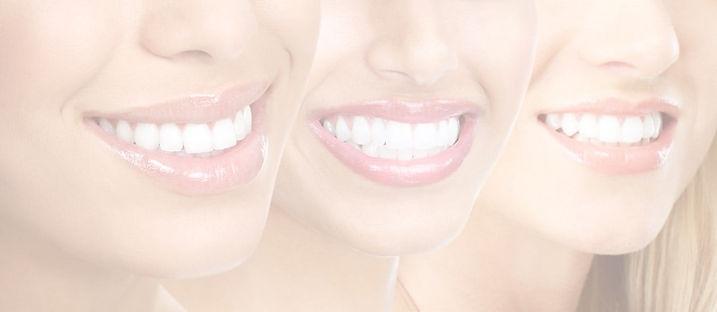smile-design1_edited.jpg