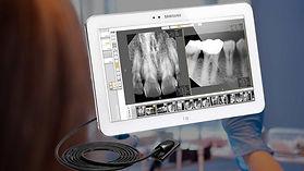 propel-dental-practice-digital-imaging-H