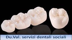 corone dentali2