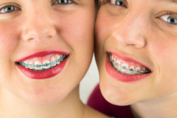 apparecchi-dentali-noproblem