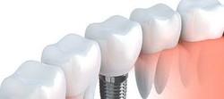 dentista-low cost Du.Val.