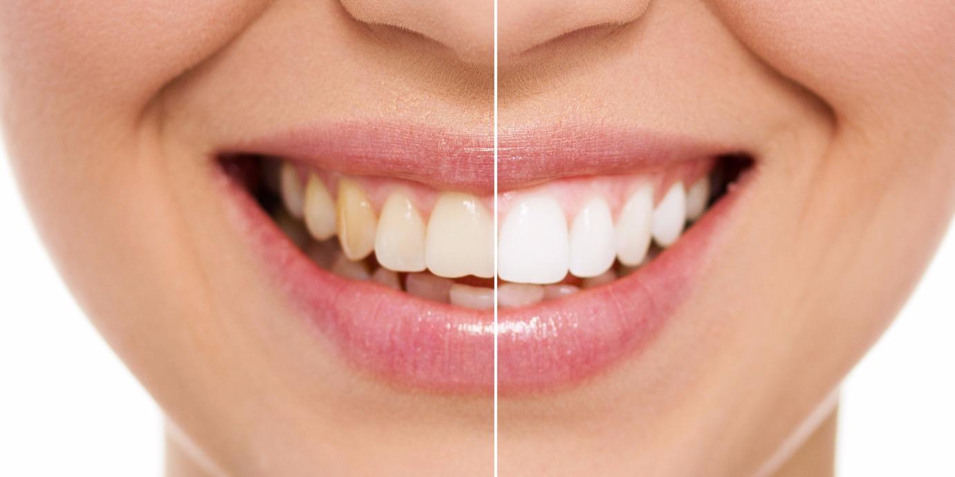 Blanqueamiento-dental_edited