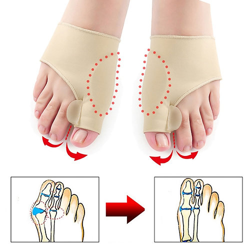 1Pair Hallux Valgus Braces Big Toe Orthopedic Correction