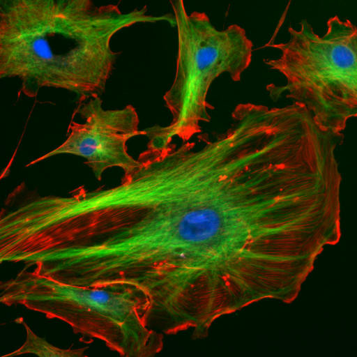 cytoskeletal matrix