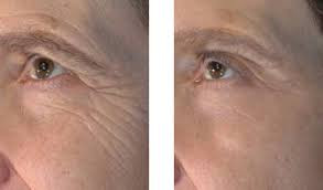 FACIAL MICRO-NEEDELING = A COLLAGEN INDUCTION THERAPY