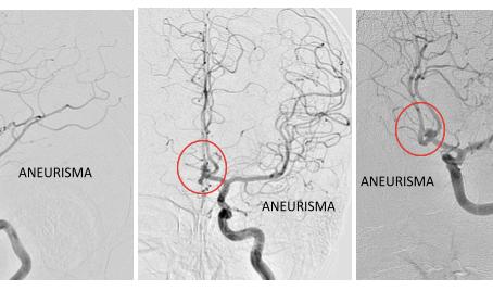 Embolización de aneurisma con utilización de Stent en Y,   y Coils