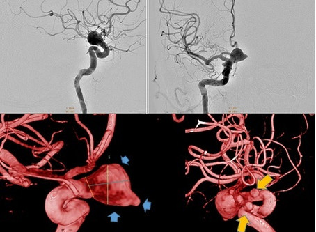 Tratamiento de Aneurisma con Endoprótesis Diversora de Flujo