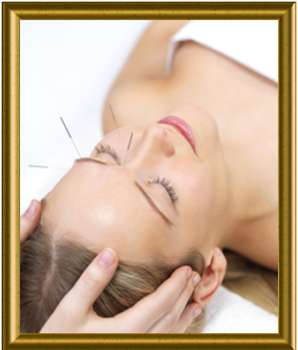 Acupuncture with frame.png