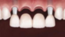 implantes-dentarios-implantes-suzano03