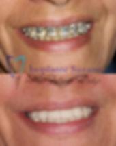 implante suzano implante dentario
