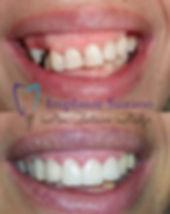 implante suzano implantes dentários esté