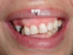implantes suzano antes e depois dra. Juliana Dahyr