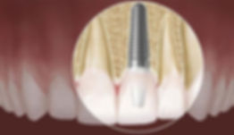 implantes-dentarios-implantes-suzano02